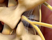 Peripheral Nerve Block